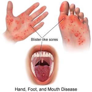 Hand-Foot-and-Mouth Disease: A Local Outbreak